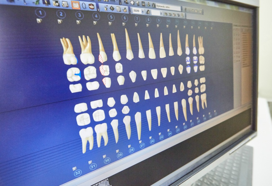 dental x rays near baltimore