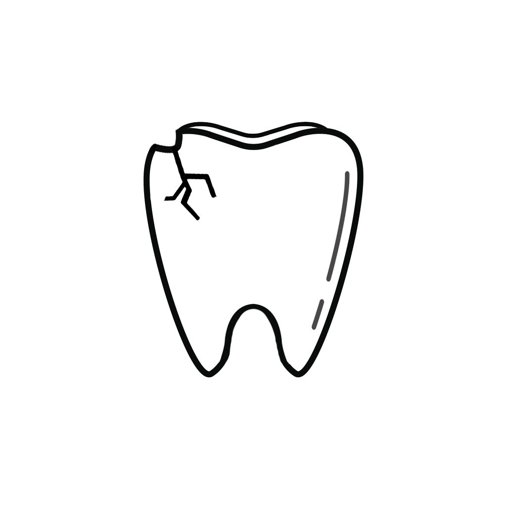 Baltimore MD Dentist | I Chipped a Tooth! What Can I Do?